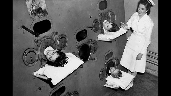 Children with polio in a US hospital, inside an iron lung. In about 0.5% of cases, patients suffered from paralysis, sometimes resulting in the inability to breathe. More often, limbs would be paralyzed.